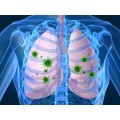Afecțiuni Respiratorii-Pulmonare
